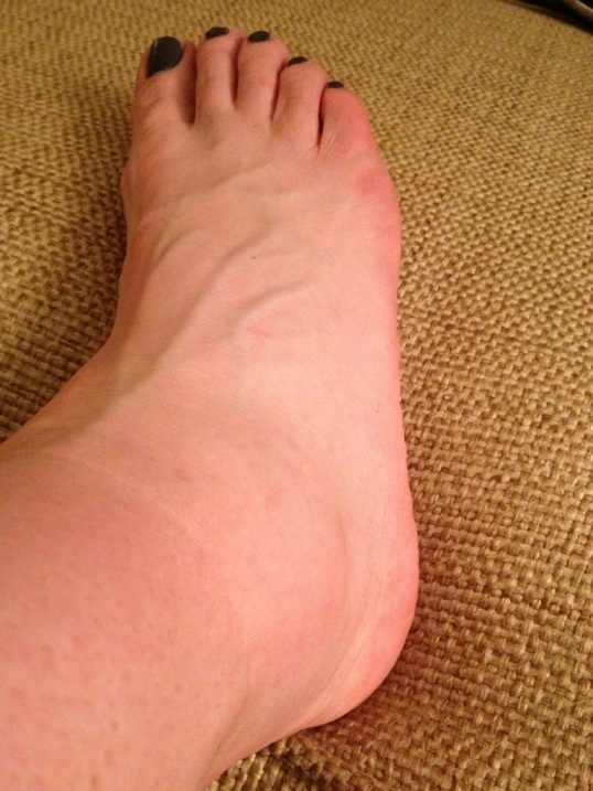 Cankle City